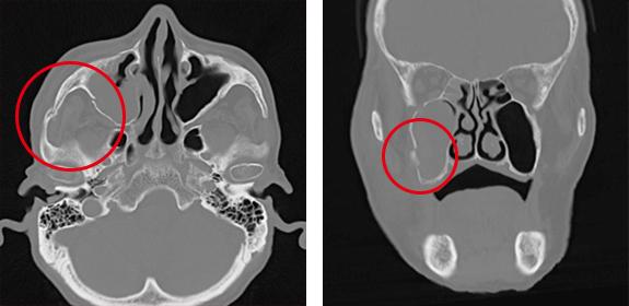 CTについて | 放射線部門 | おゆ...